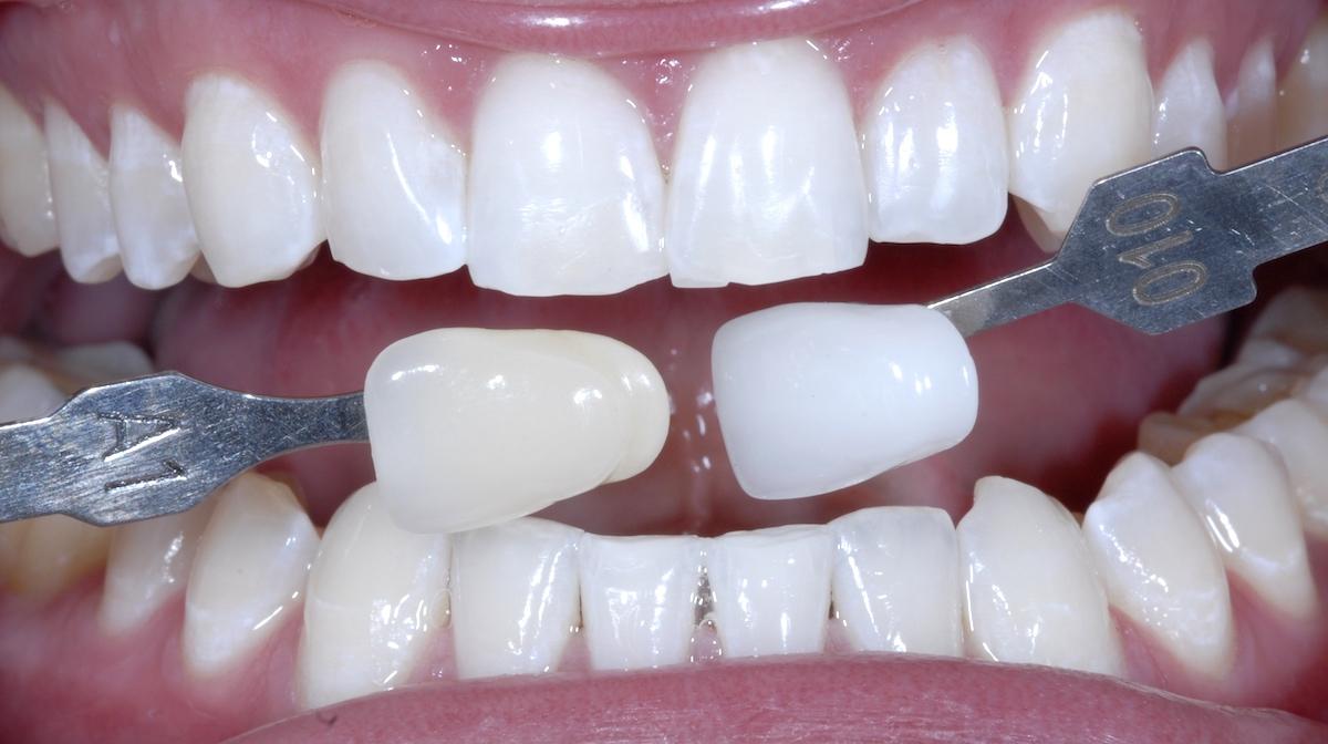 Dentures Whitening Shades