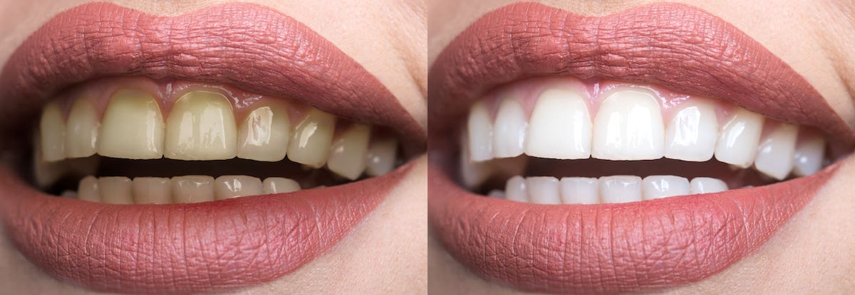 Dentures Whitening Stains