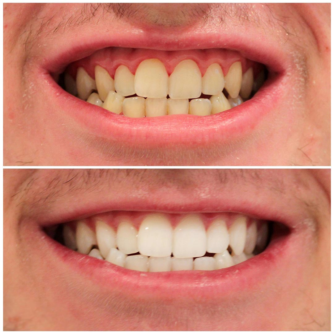 Dentures Whitening