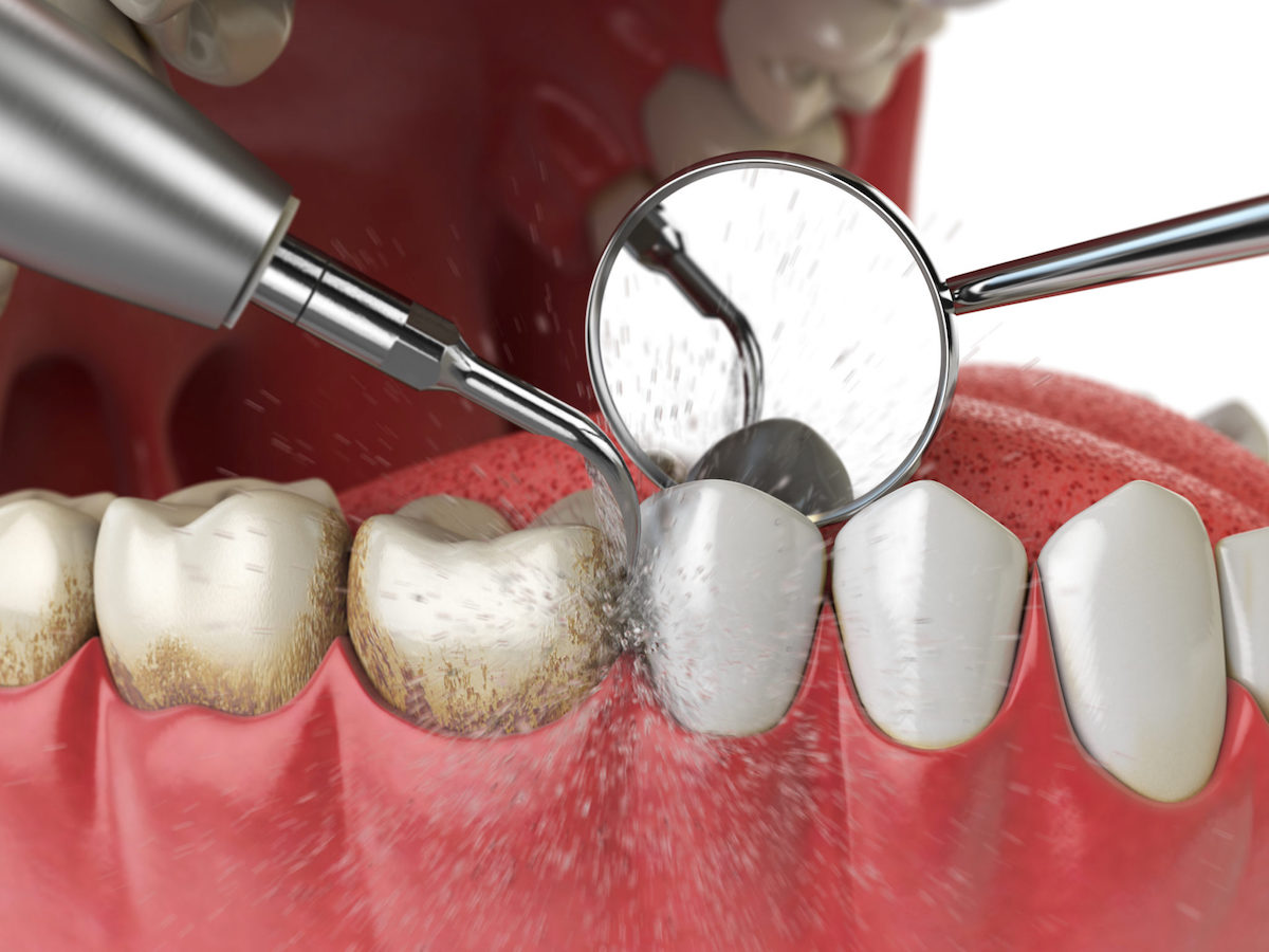 Teeth Cleaning Scaling and Polishing
