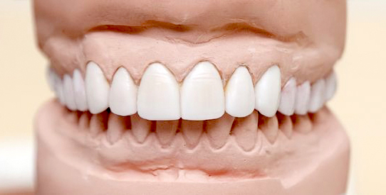 Dental Crown Bite