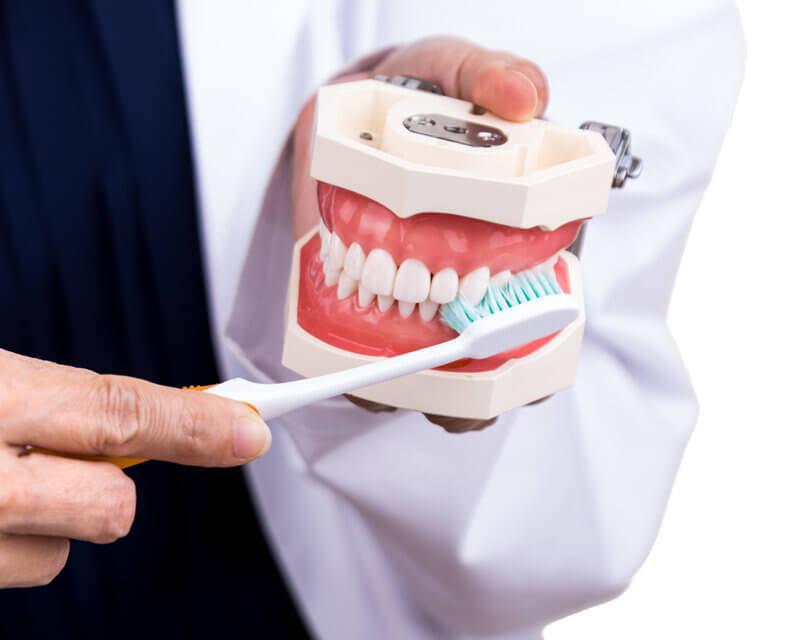 Dental Crown brushing