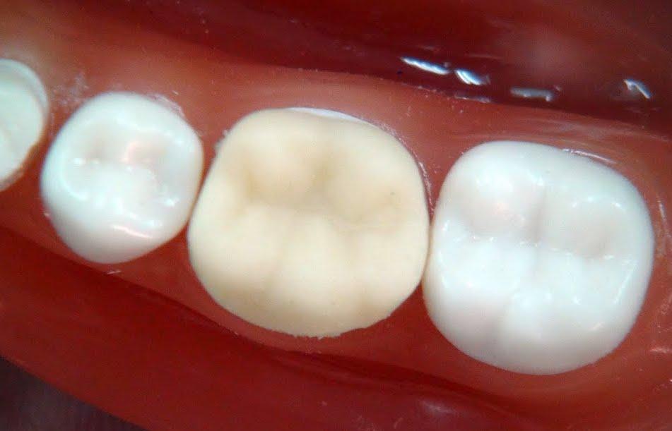 Dental Crown temporary