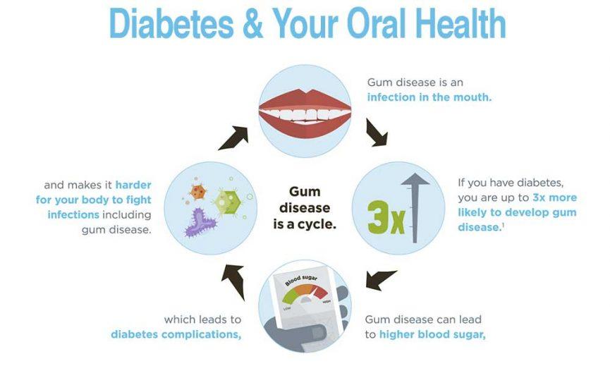 Gum-Disease-and-Diabetes Oral Health