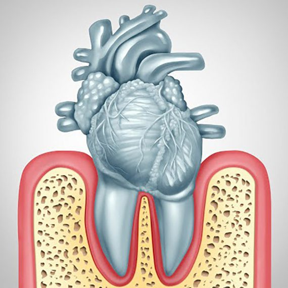 Oral Care Gum Disease and Heart Disease
