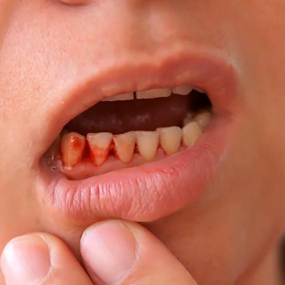Gum Disease gum-infection