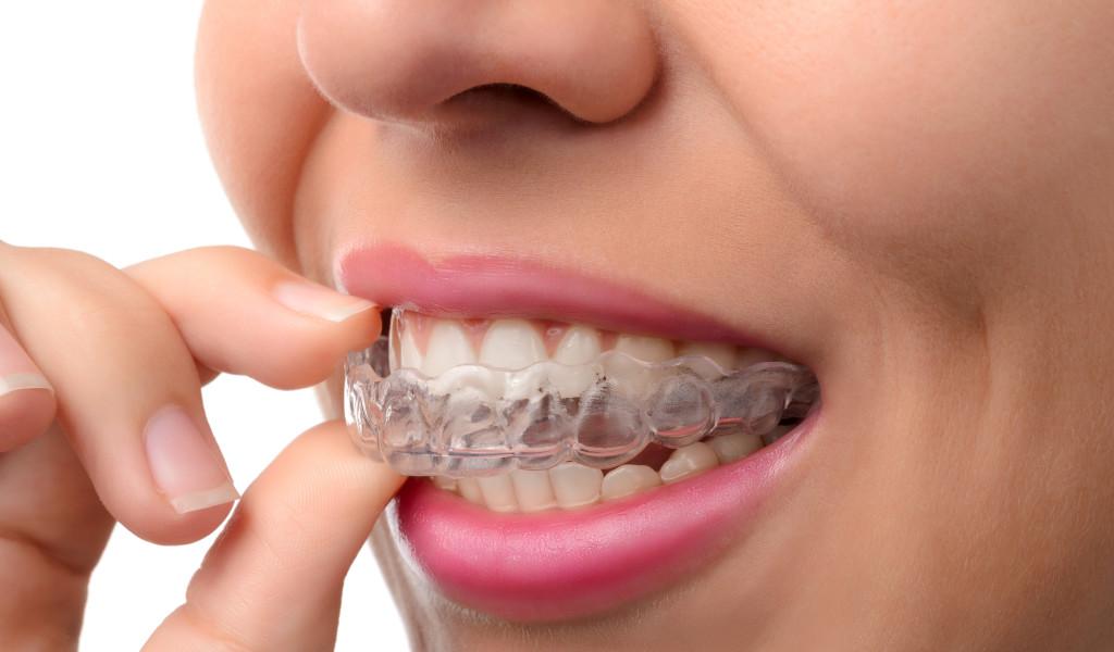 gums mouthguard