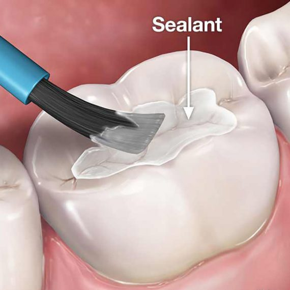 Healthy gums Fissure sealant